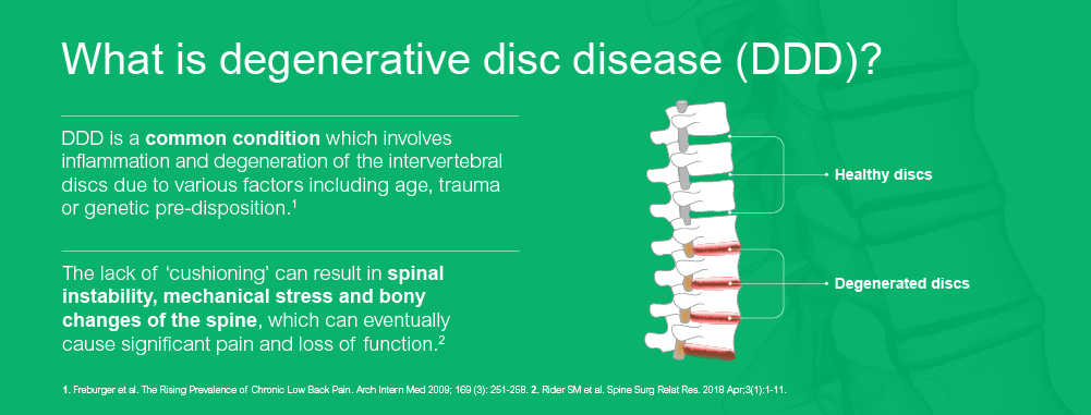 What is degenerative disc disease (DDD ) ?
